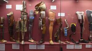 Člověk v náhradách aneb technika slouží medicíně - Národní technické muzeum